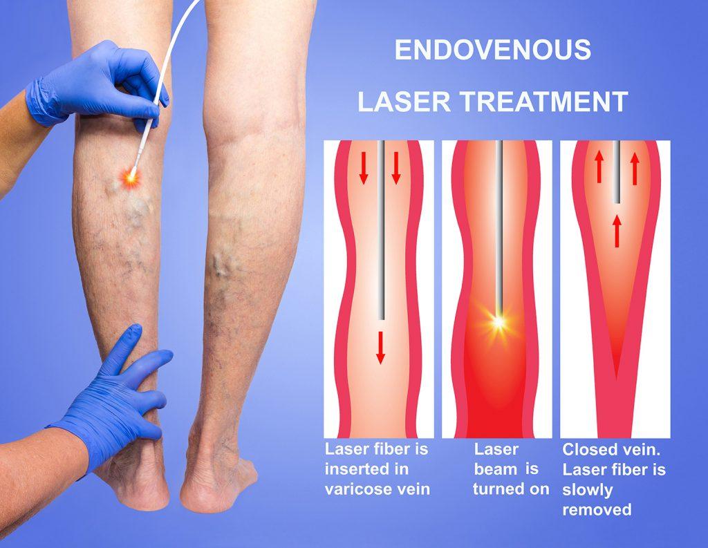 Endo-venous_Laser_Treatment_(EVLT)