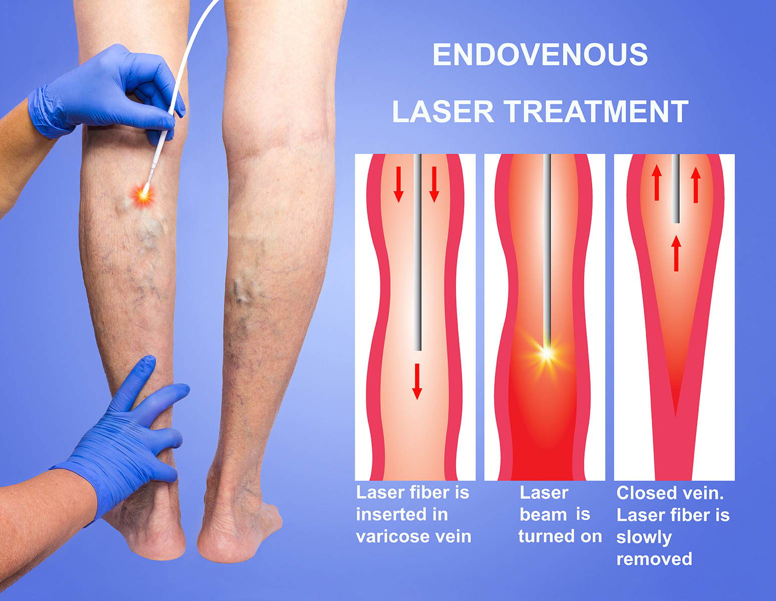 Endo-venous_Laser_Treatment_(EVLT)