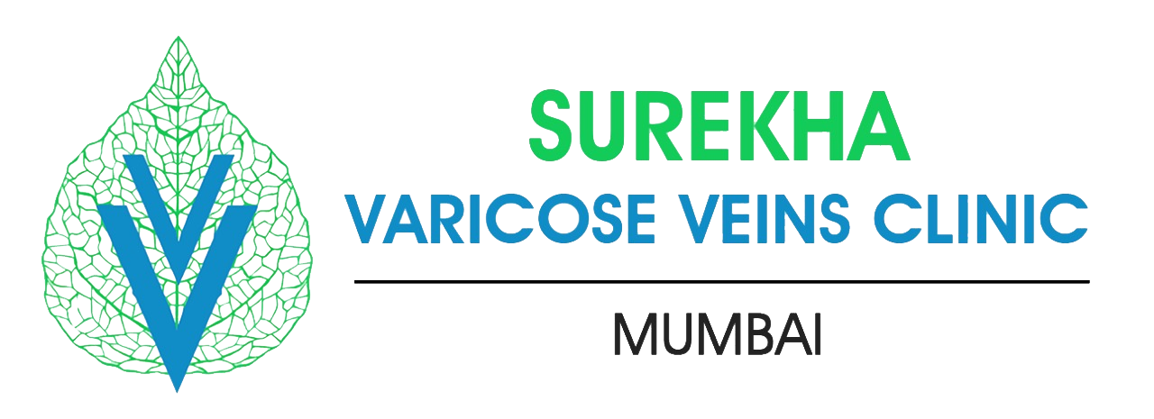 Varicose Veins Mumbai