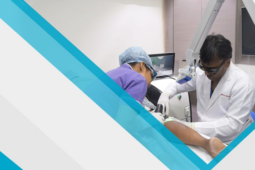 Dr-ashish-dhadas-varicose-veins-slider