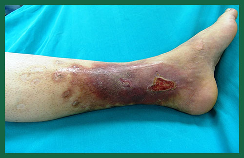 venous-ulcer-surekha-varicose-veins-clinic-a