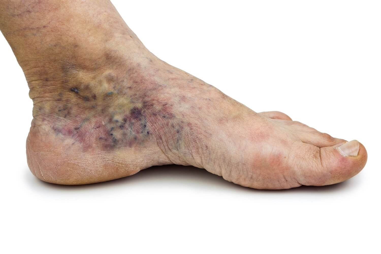 venous-ulcer-surekha-varicose-veins-clinic