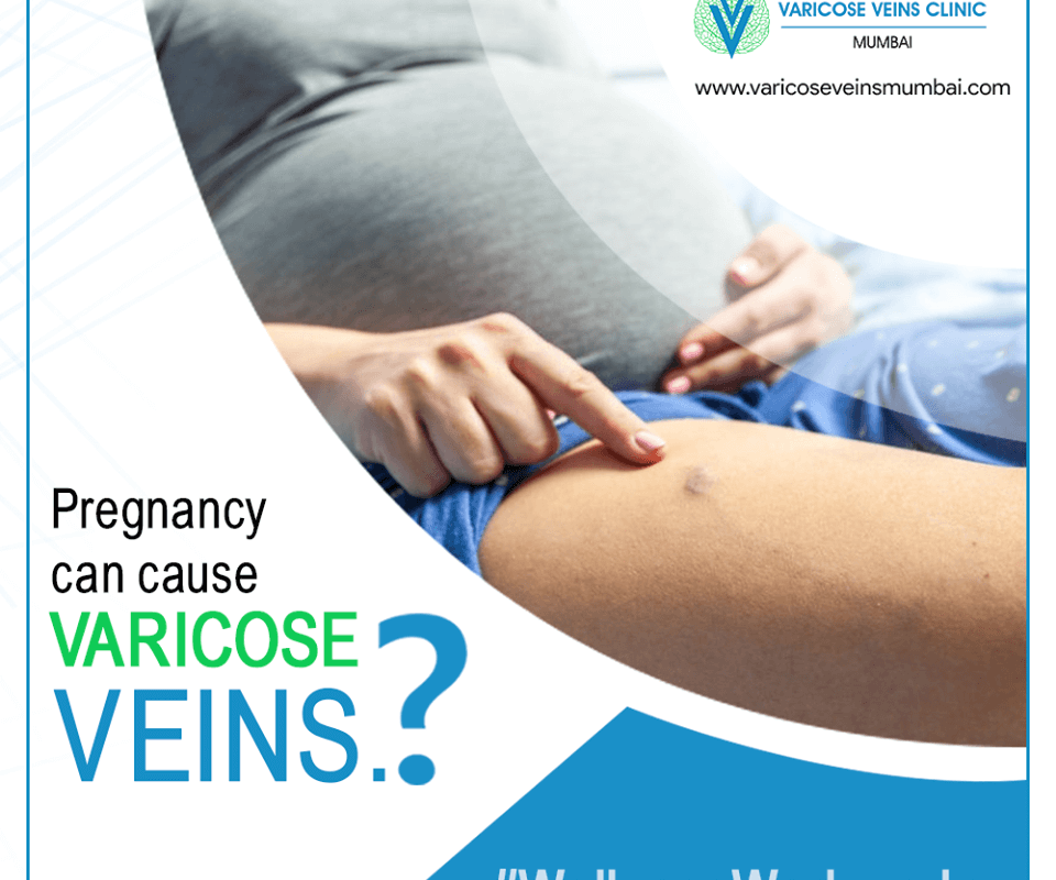 varicose veins during preganancy