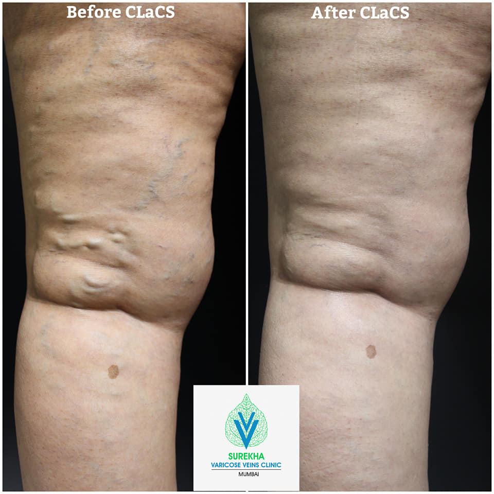 CLaCS Treatment For Spider Veins