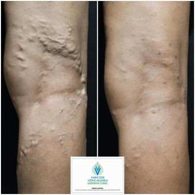 Best Laser Varicose Veins Treatment