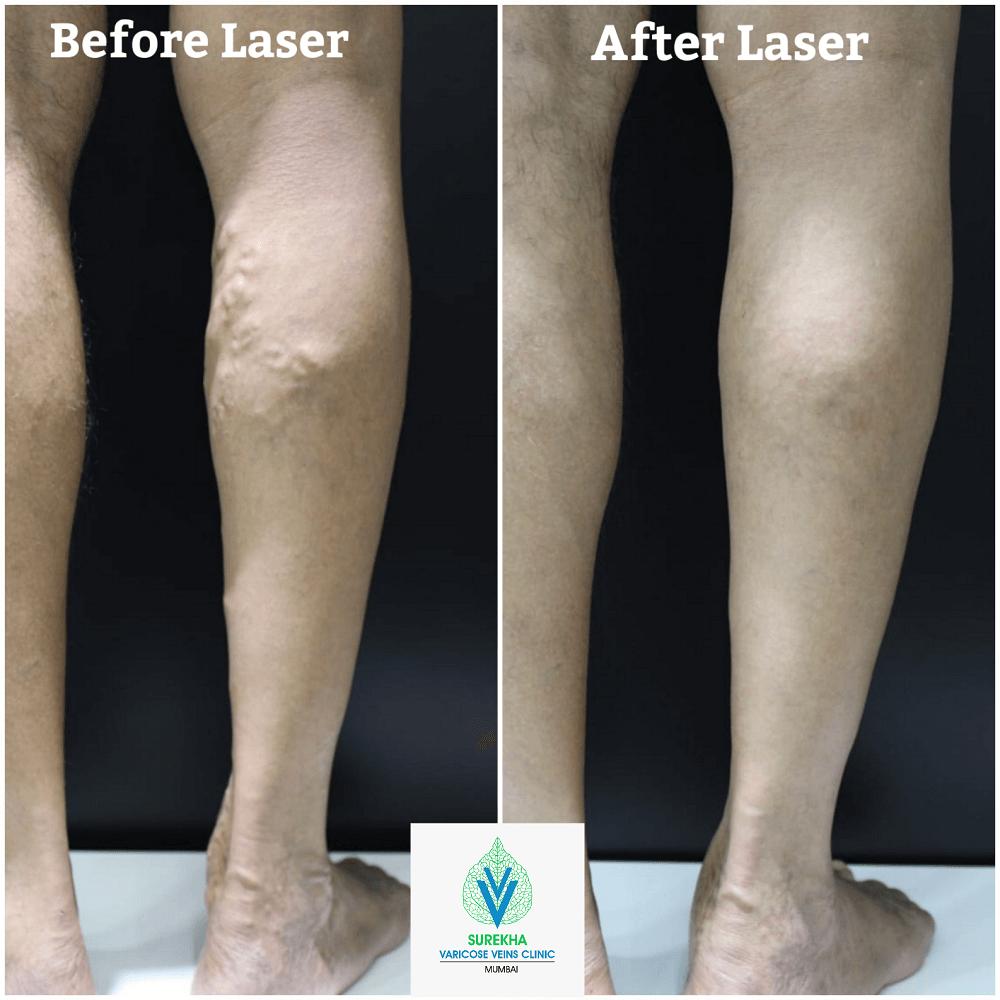Best result for laser treatment