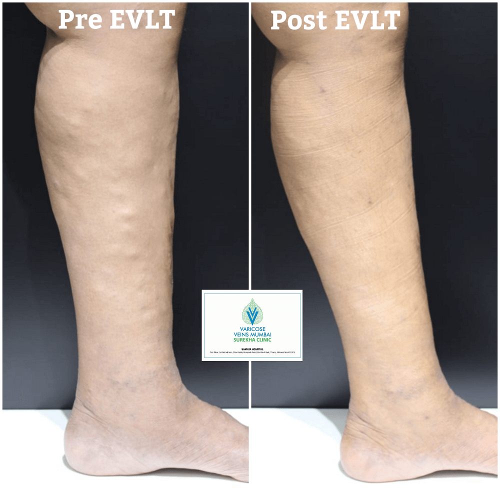 Best varicose veis treatent