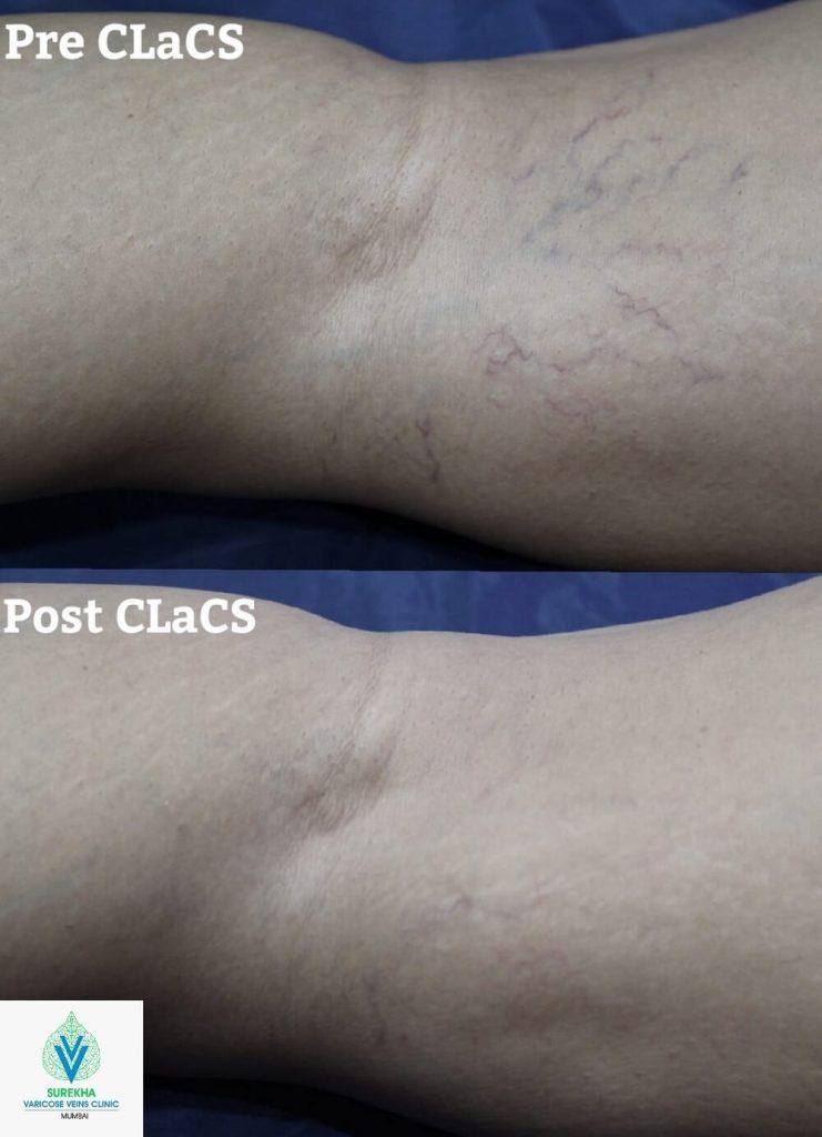 CLaCS treatment in Surekha Varicose VeinClinic