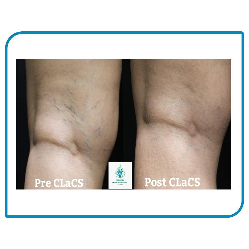 CLaCS treatment result