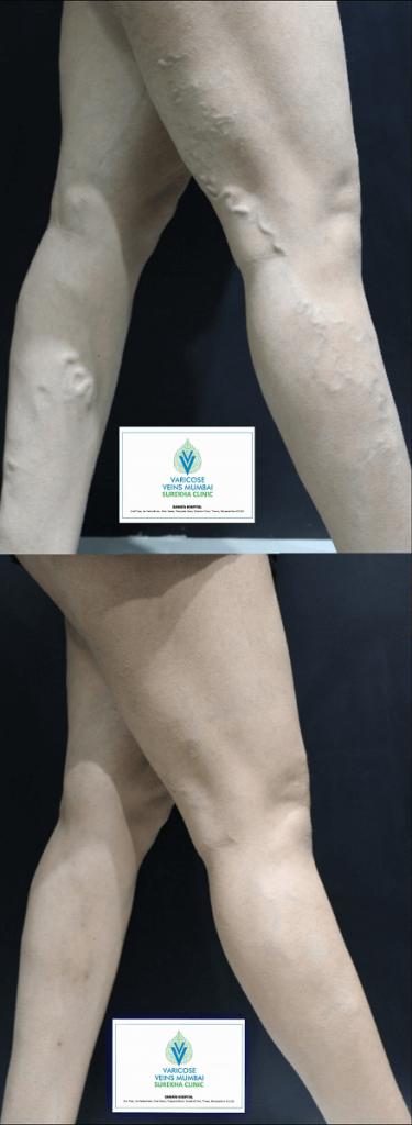 EVLT treatment for varicose veins