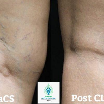 best CLaCS treatment for varicose veins