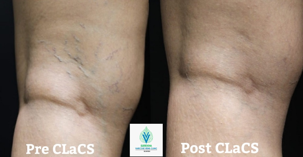 best CLaCS treatment for varicose veins