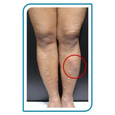 deep varicose veins treatment