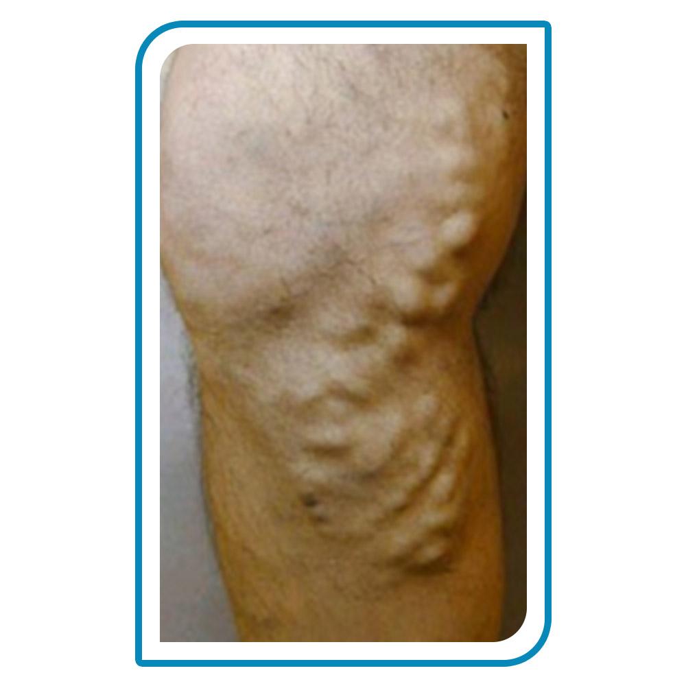 effect of varicose veins