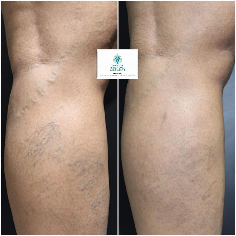 result of CLaCS treatment