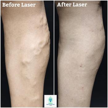 varicose veins laser treatment in thane
