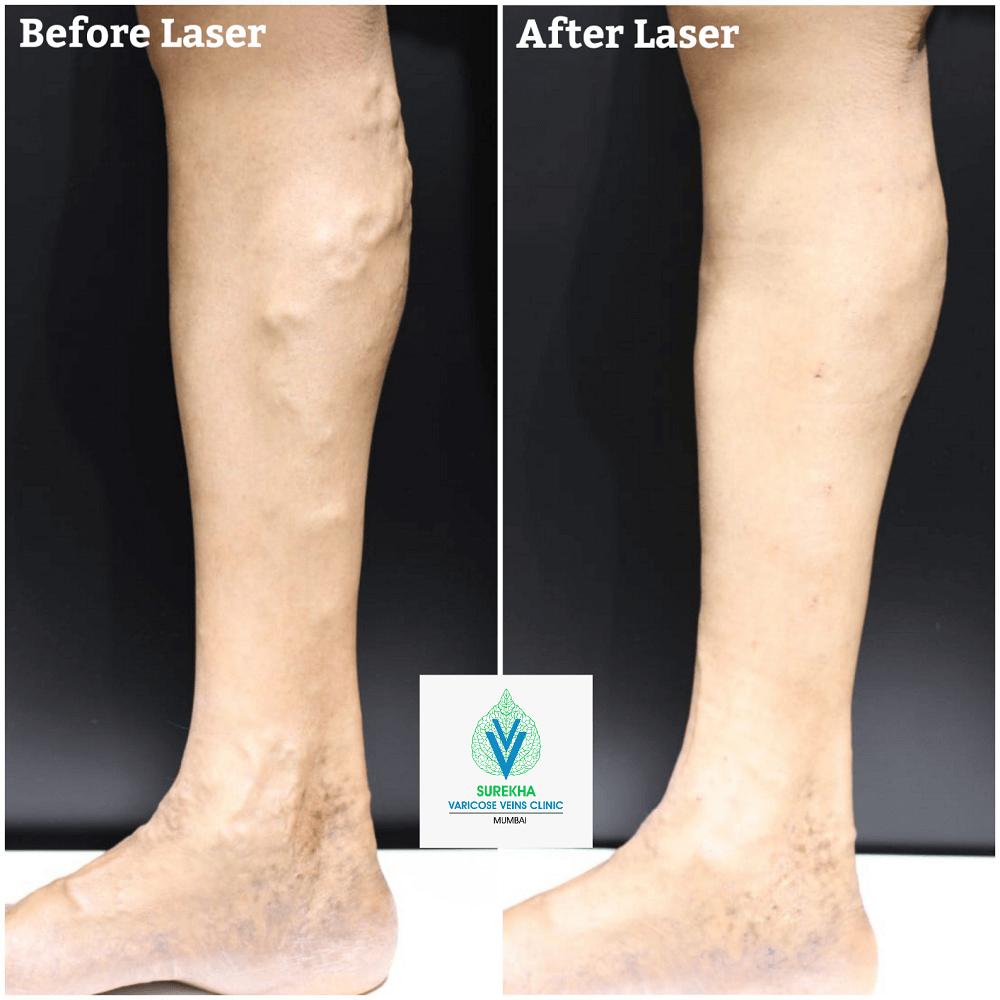 varicose veins laser treatment