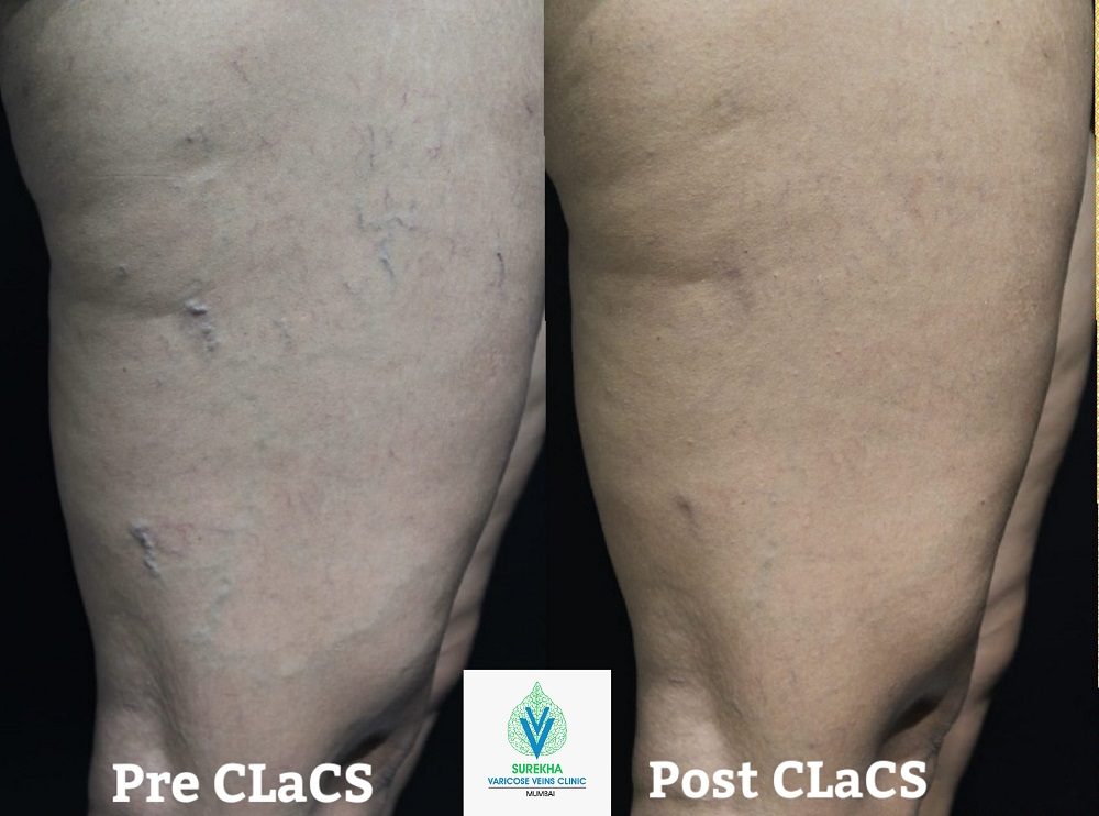 varicose veins treatment result