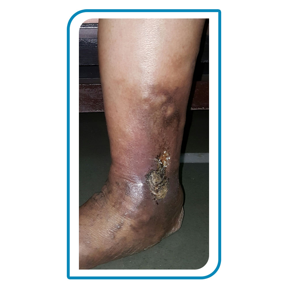 what is leg ulcer