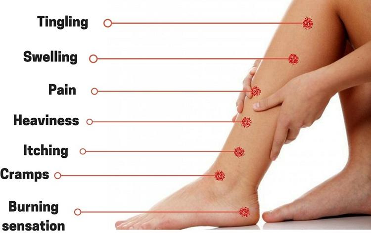 Signs and Symptoms Of Varicose Veins